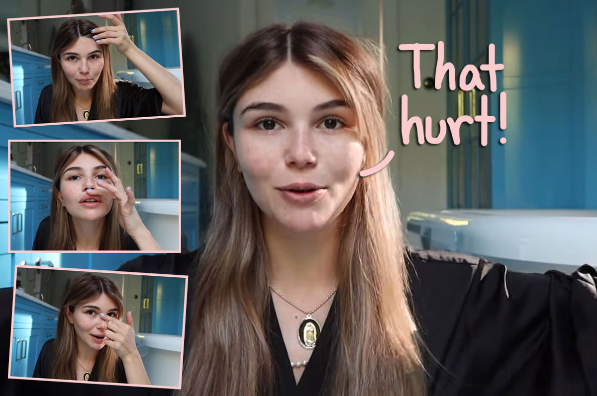 OMG! Olivia Jade Split Her Lip & Chipped Her Tooth After Passing Out On Her Bathroom Floor!