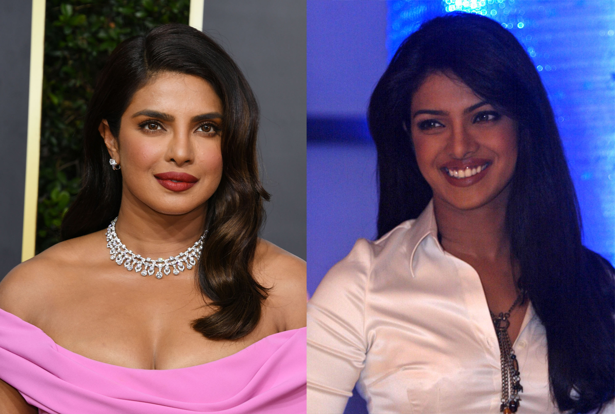 Priyanka Chopra Reveals Her Nose Is Actually The Result Of Botched Surgery
