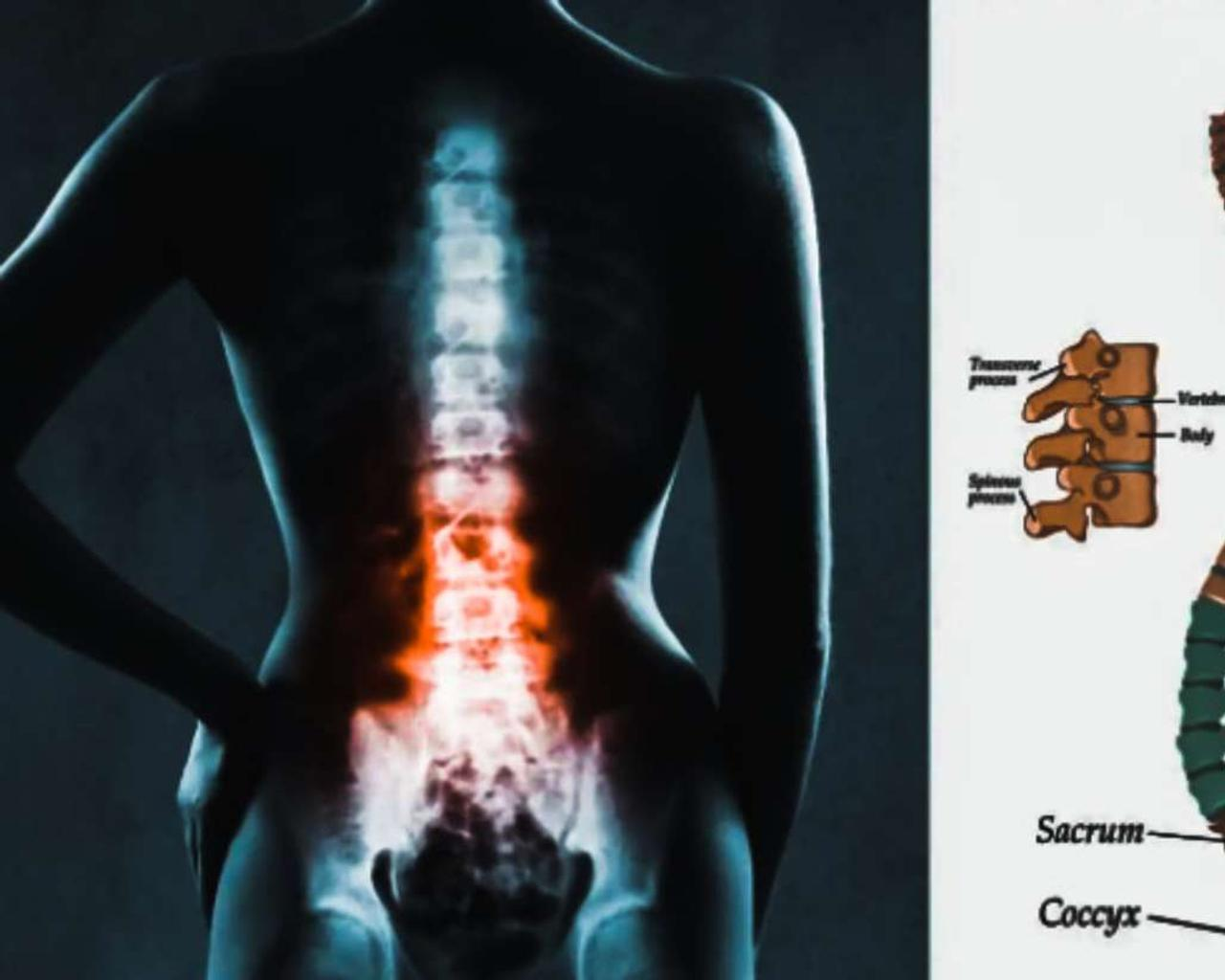 Some habits that will help to make your spine healthier.