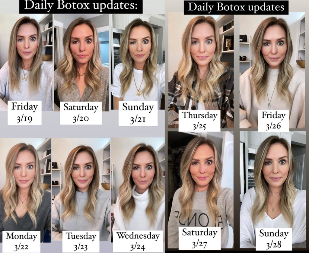 Influencer Documents Horrible Botox Gone Wrong Situation That Left Her Bug-Eyed!