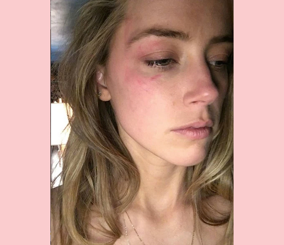 Amber Heard hit with phone bruise